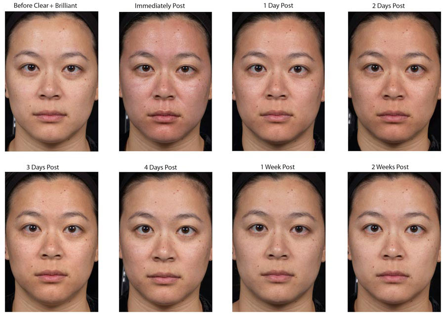 Fraxel Laser Treatment at LAB skin clinic - Call 02 9909 3326