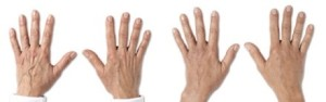 lab-spa-clinic-anti-ageing-hand-treatment-1