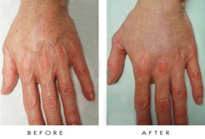 lab-spa-clinic-anti-ageing-hand-treatment-2