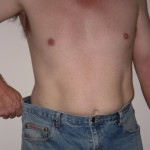 lab-spa-clinic-body-fat-removal-2