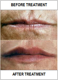 lab-spa-clinic-lip-treatments-2