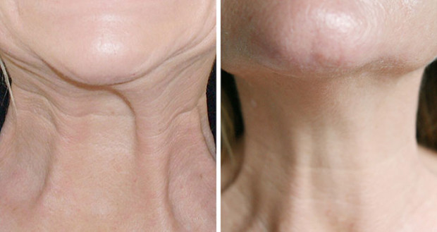 lab-spa-clinic-neck-lift-1