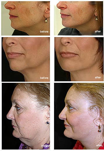 lab-spa-clinic-neck-lift-2