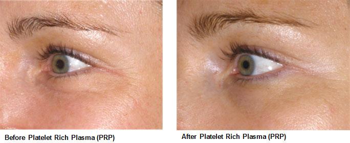lab-spa-clinic-platelet-rich-palsma-3