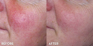 lab-spa-clinic-rosacea-treatment-LAB Skin Clinic 02 9909 3602-cammeray
