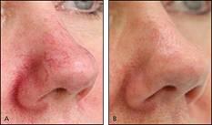 lab-spa-clinic-spider-veins-2