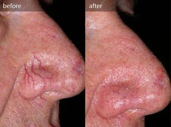 lab-spa-clinic-spider-veins-3