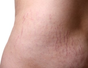 Do You Want To Be Rid Of Stretch Marks? By L.A.B Skin Clinic Call 02 9909 3602