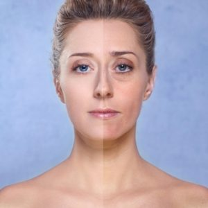 When Should I Consider Facial Fillers?-LAB Skin Clinic Neutral Bay 02 9909 3602-1/202-212 Military Road Neutral Bay New South Wales 2089.