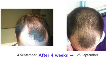 Hair-Restoration-before-after2