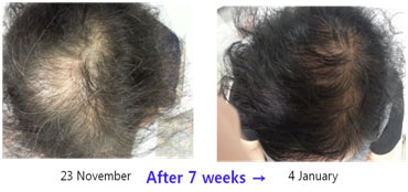 Hair-Restoration-before-after3