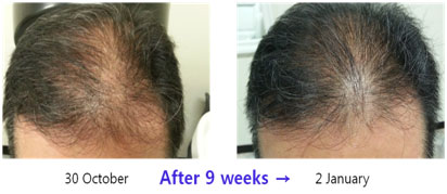 Hair-Restoration-before-after4