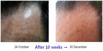 Hair-Restoration-before-after5