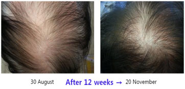 Hair-Restoration-before-after6