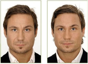 Mens-Facial-Rejuvenation-treatments
