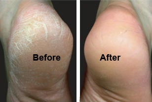 foot-treatment-sydney-skin