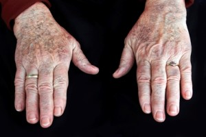 Can Intense Pulsed Light Help My Hands?