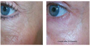 micro-needling-treatments-before-after