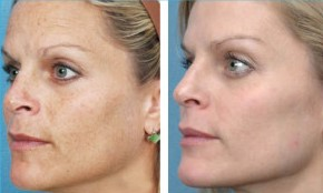 Microdermabrasion North Sydney - LAB Skin Clinic  02 9909 3602