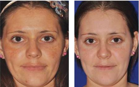 Skin Needling North Sydney - LAB Skin Clinic 02 9909 3602