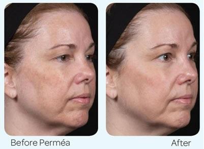 Laser Treatment North Shore - LAB Skin Clinic 02 9909 3602