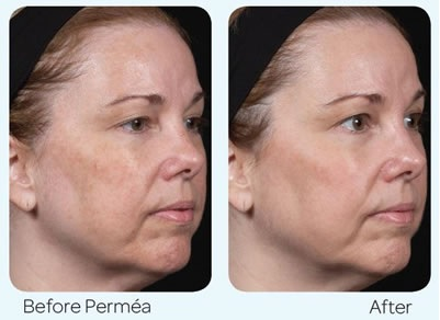 Laser Treatment - Permea - LAB Skin Clinic - 02 9909 3602