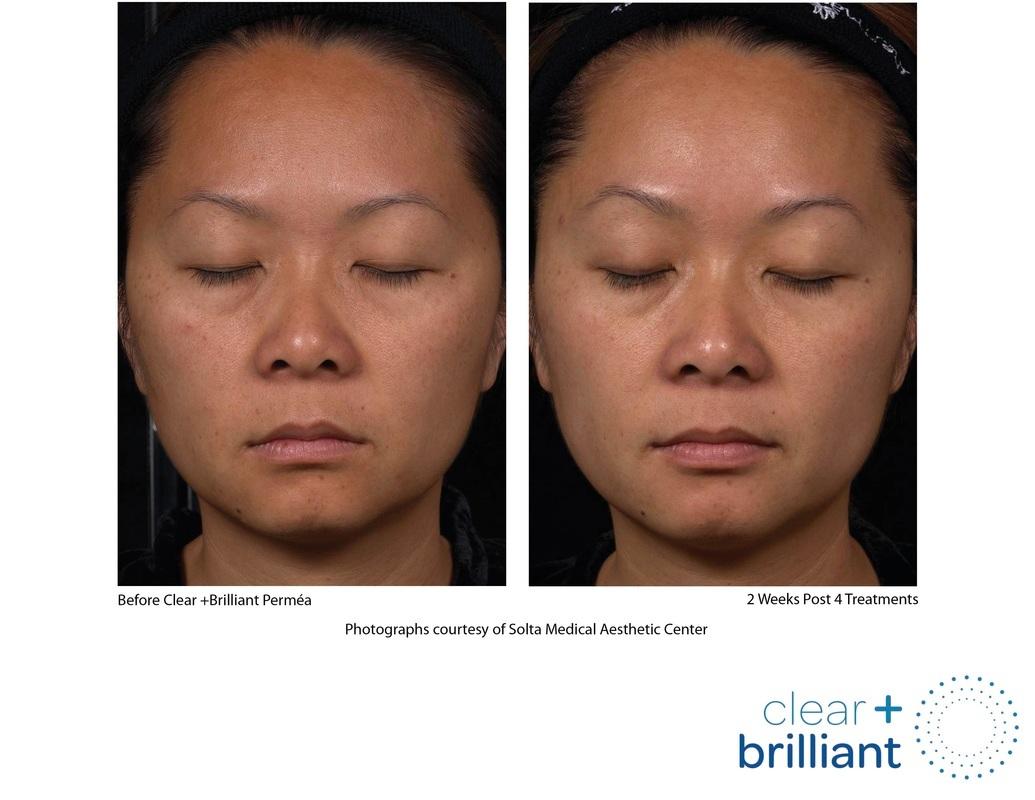 Laser Treatment - Clear + Brilliant - LAB Skin Clinic - 02 9909 3602