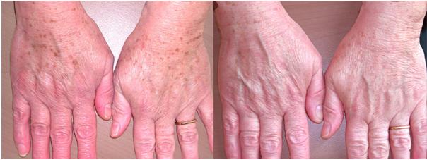 IPL Cremorne - LAB Skin Clinic 02 9909 3602