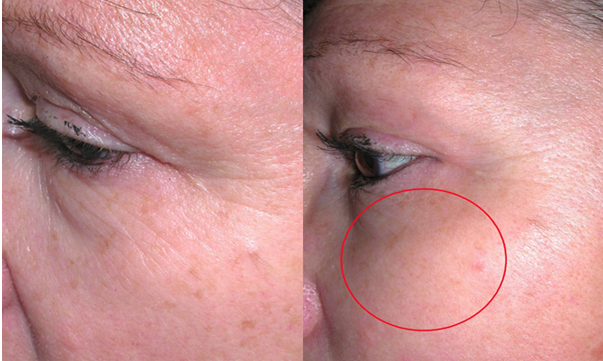 IPL Crows Nest - LAB Skin Clinic 02 9909 3602