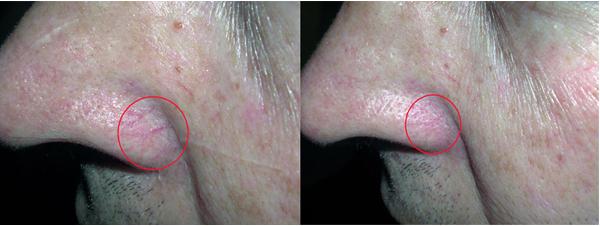 IPL Mosman - LAB Skin Clinic 02 9909 360