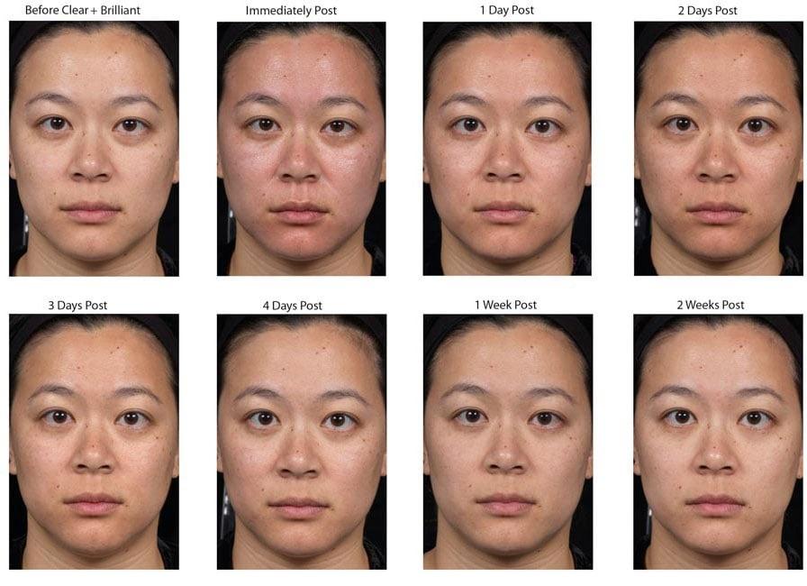 Laser Treatment - LAB Skin Clinic - 02 9909 3602