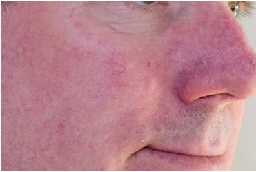 Rosacea-Cremorne - LAB Skin Clinic 02 9909 3602