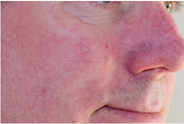 Rosacea-North Sydney - LAB Skin Clinic 02 9909 3602