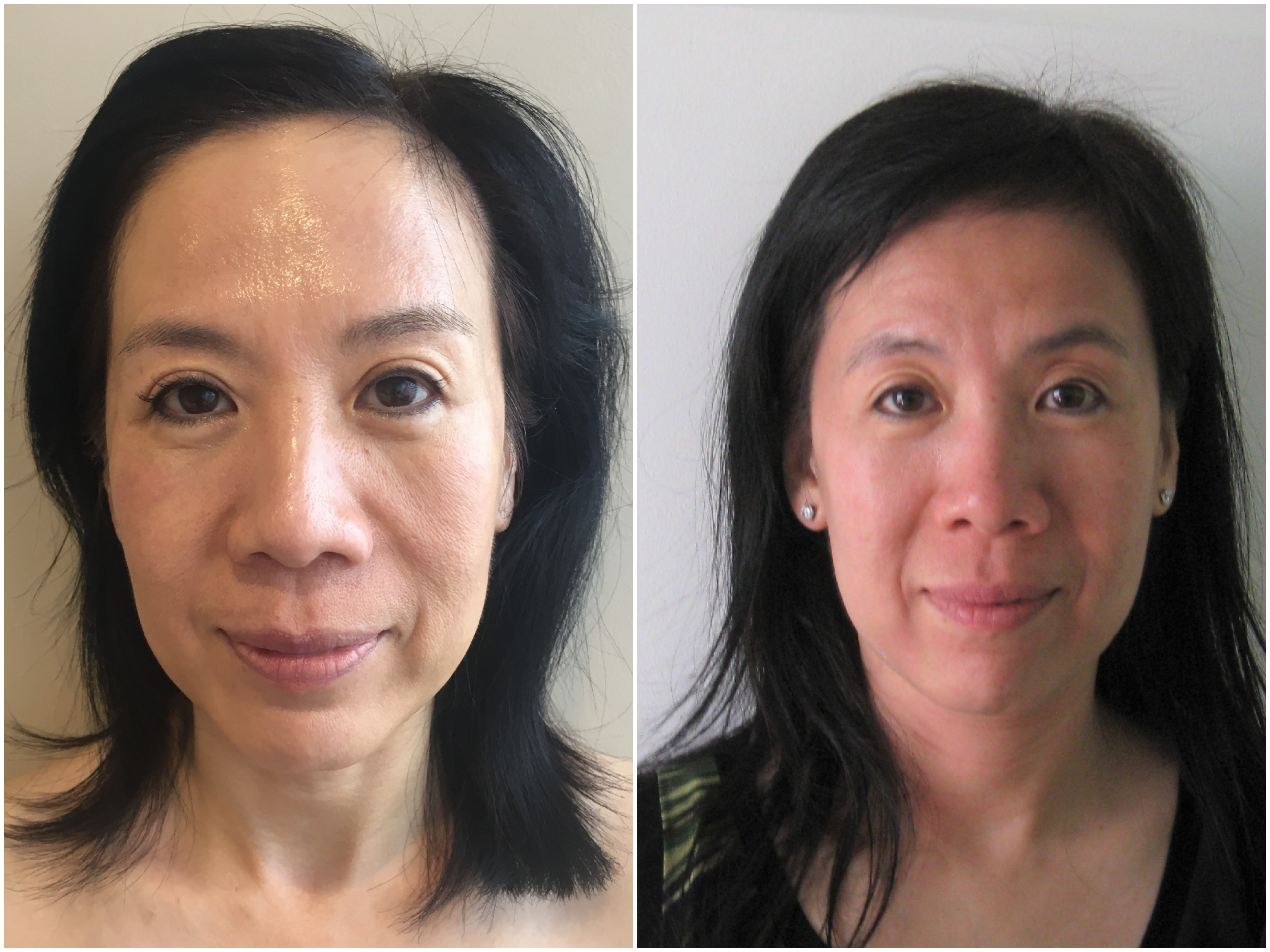 Non Surgical Facelift | L A B Skin Clinic Neutral Bay 02