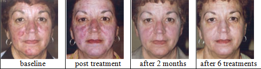 Rosacea by LAB Skin Clinic 02 9909 3602