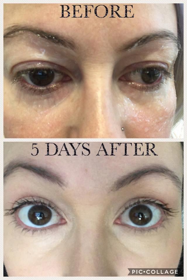 Non Surgical Eye Lift L A B Skin Clinic Neutral Bay 02